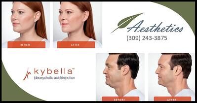 Kybella-say-goodbye-to-double-chin-461604-edited.jpg