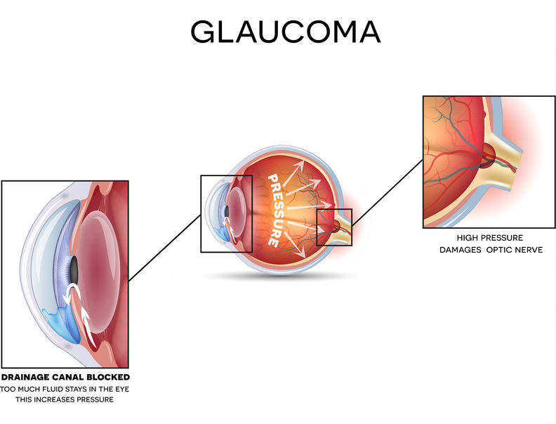 Did You Miss Your Glaucoma Screening Last Year? Schedule Your Appointment this January, During Glaucoma Awareness Month