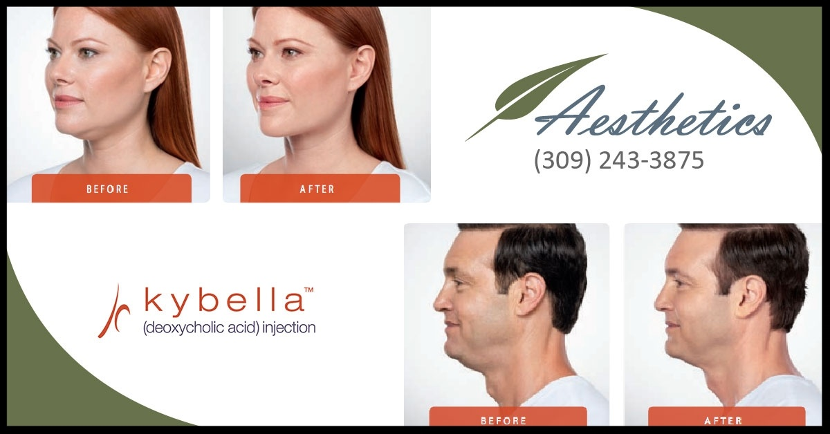 KYBELLA: Say Goodbye to Your Double Chin